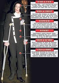 michael-jackson-autopsy